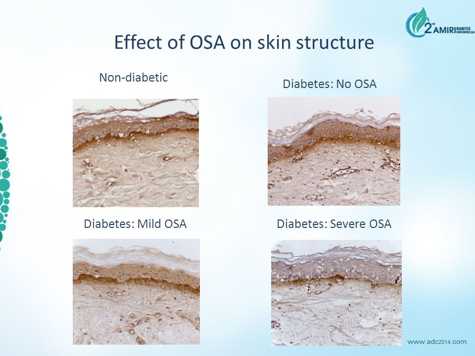 Effect of OSA on skin structure