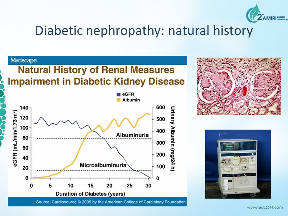 Diabetic nephropathy: natural history