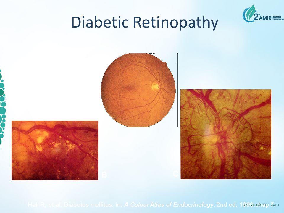 Diabetic Retinopathy A B C