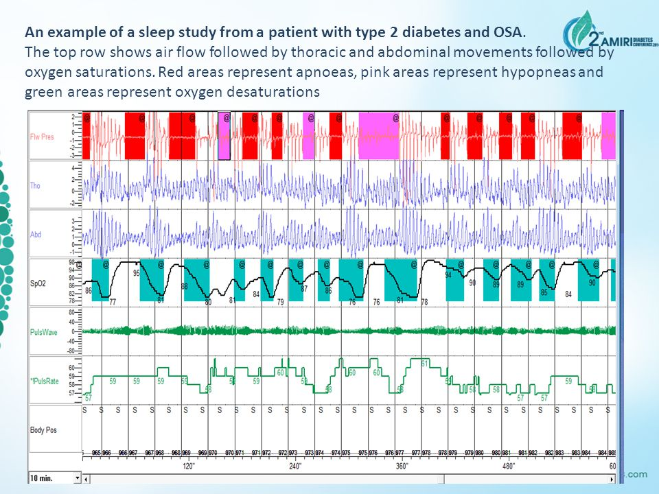 An example of a sleep study from a patient with type 2 diabetes and OSA.