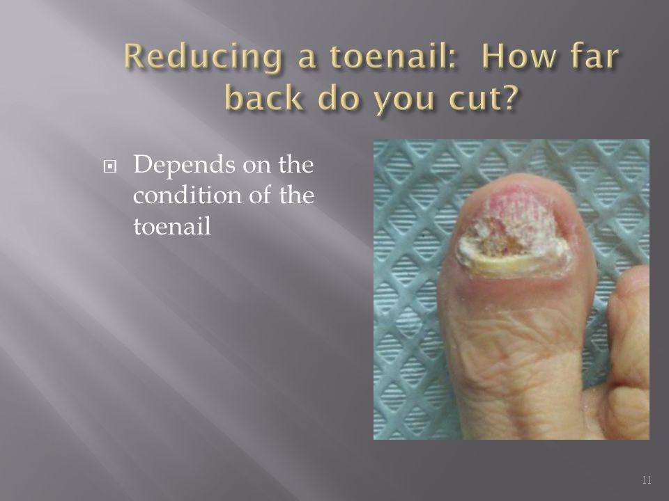 Reducing a toenail: How far back do you cut