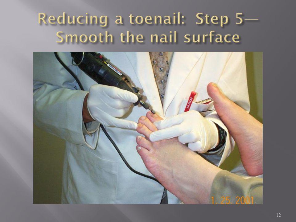 Reducing a toenail: Step 5—Smooth the nail surface