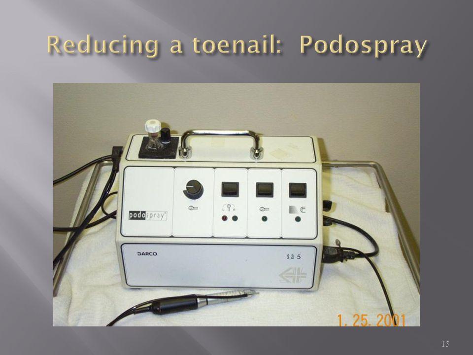 Reducing a toenail: Podospray