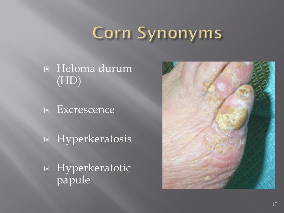Corn Synonyms Heloma durum (HD) Excrescence Hyperkeratosis