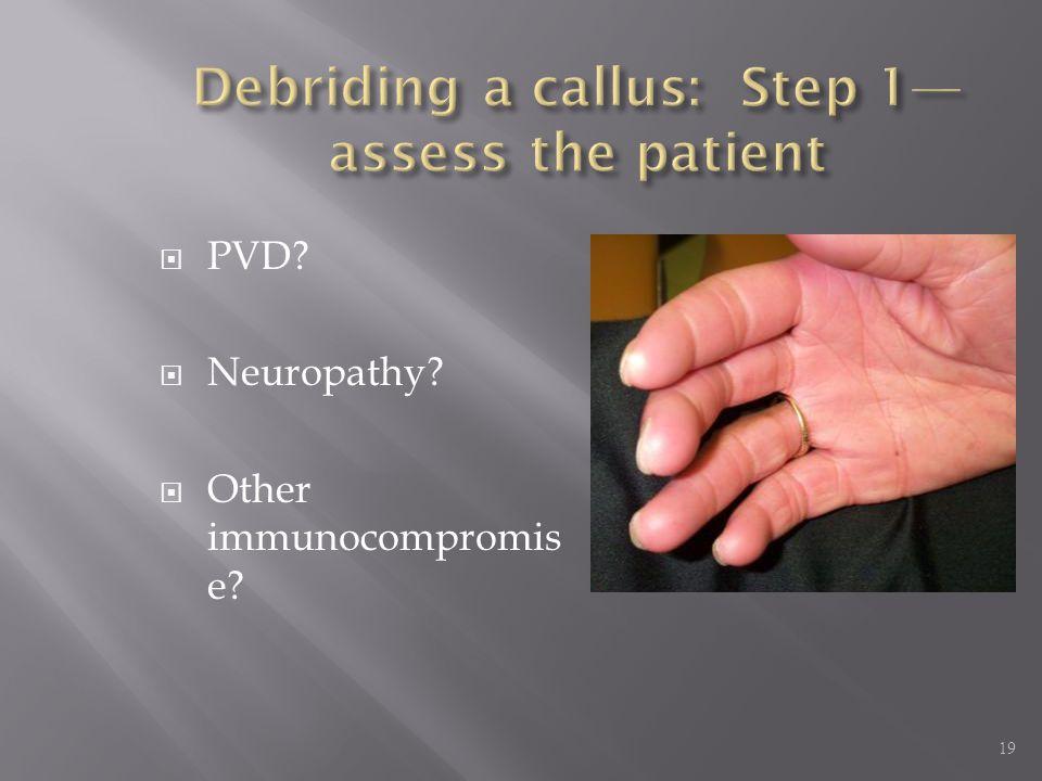 Debriding a callus: Step 1—assess the patient