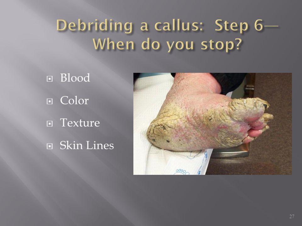Debriding a callus: Step 6—When do you stop