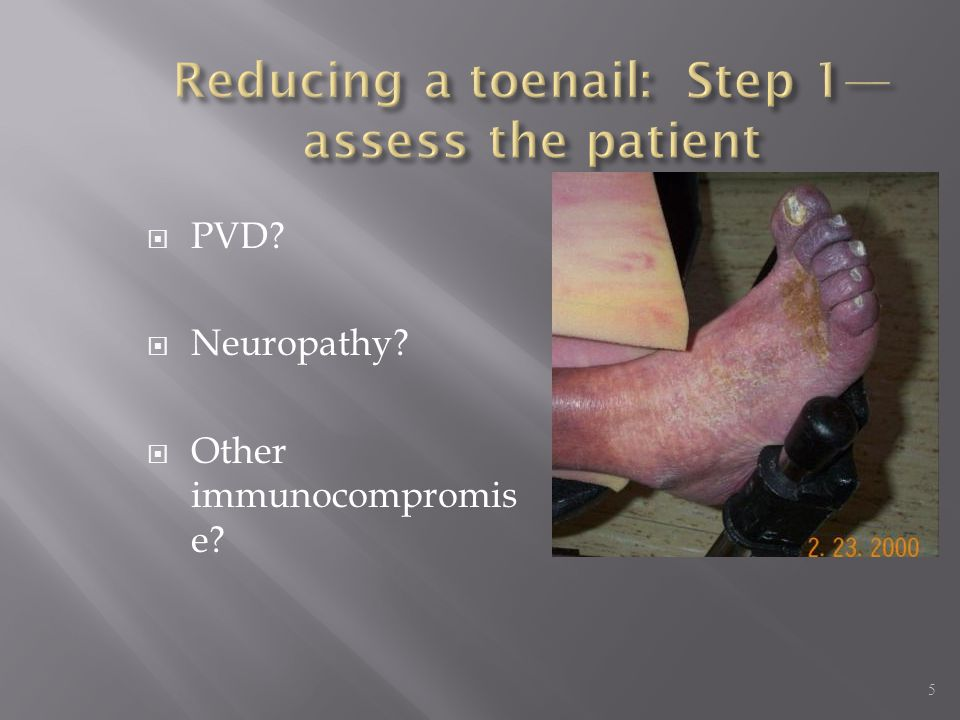 Reducing a toenail: Step 1—assess the patient