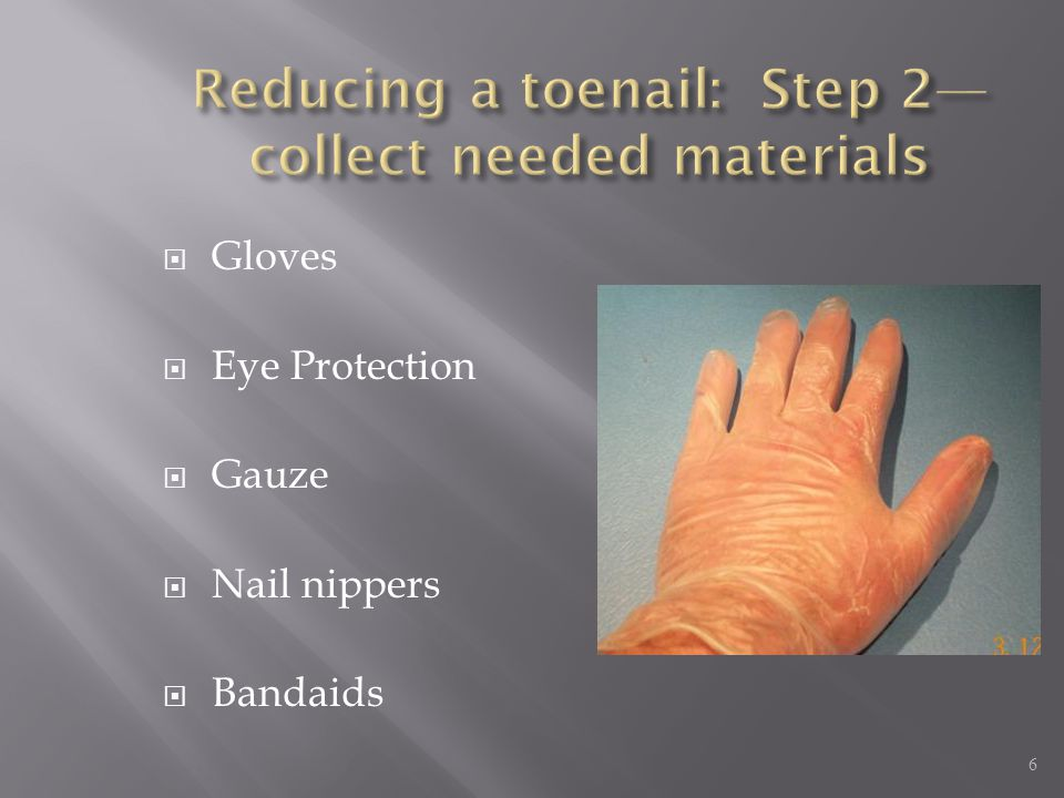 Reducing a toenail: Step 2—collect needed materials