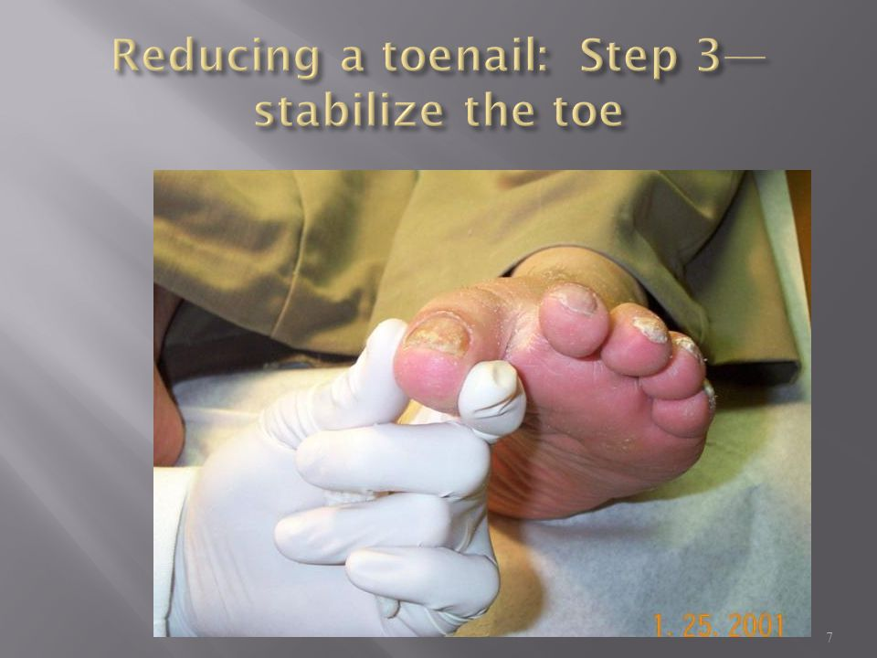 Reducing a toenail: Step 3—stabilize the toe