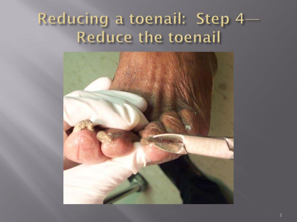 Reducing a toenail: Step 4—Reduce the toenail