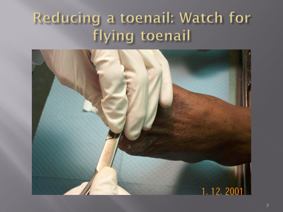 Reducing a toenail: Watch for flying toenail