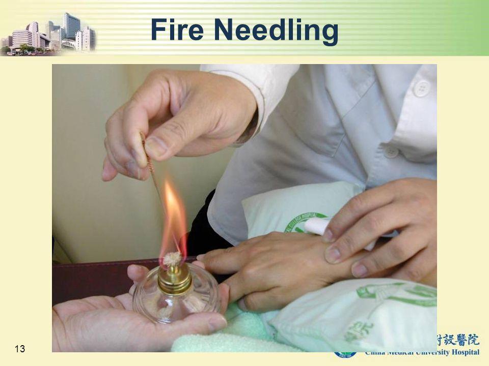Fire Needling