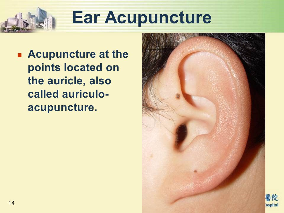Ear Acupuncture Acupuncture at the points located on the auricle, also called auriculo-acupuncture.