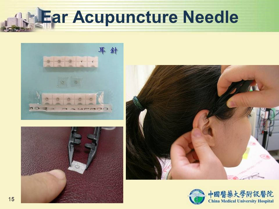 Ear Acupuncture Needle
