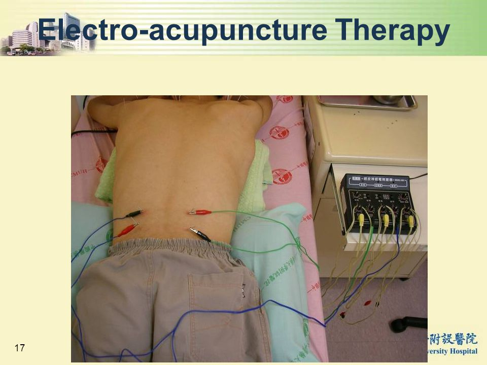 Electro-acupuncture Therapy