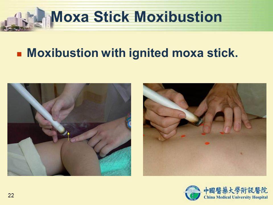 Moxa Stick Moxibustion