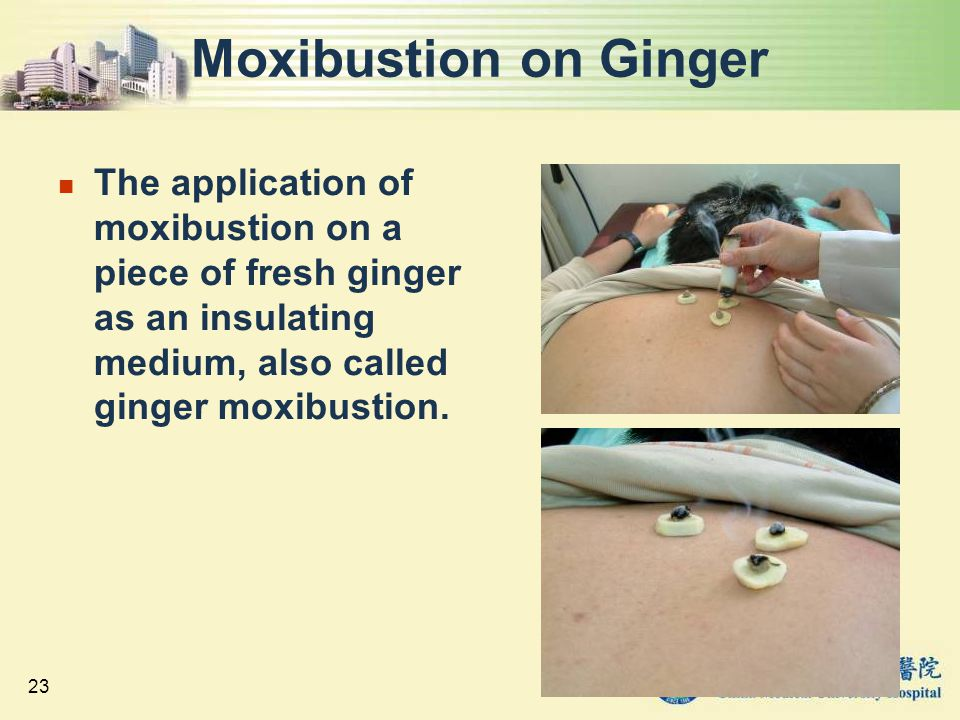 Moxibustion on Ginger The application of moxibustion on a piece of fresh ginger as an insulating medium, also called ginger moxibustion.