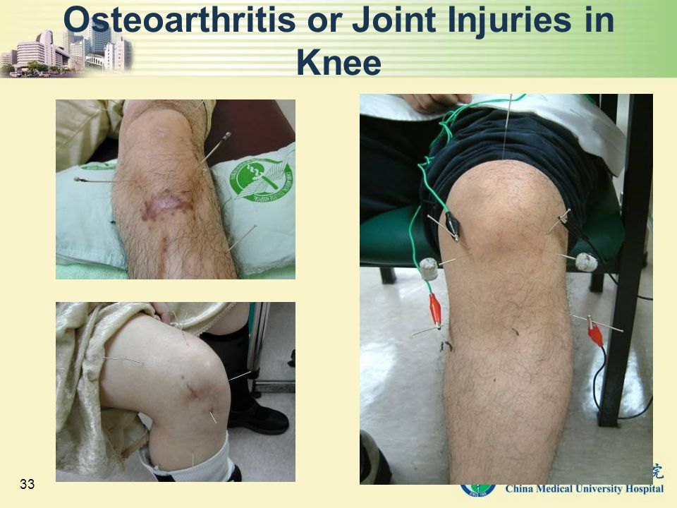 Osteoarthritis or Joint Injuries in Knee