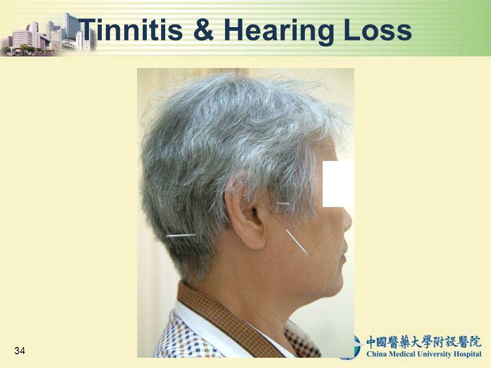 Tinnitis & Hearing Loss