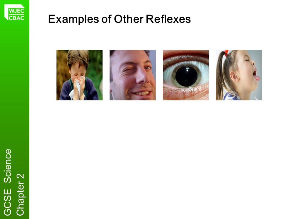 Examples of Other Reflexes