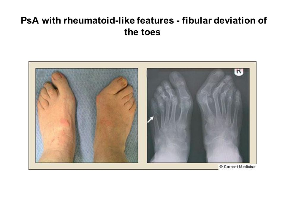 PsA with rheumatoid-like features - fibular deviation of the toes