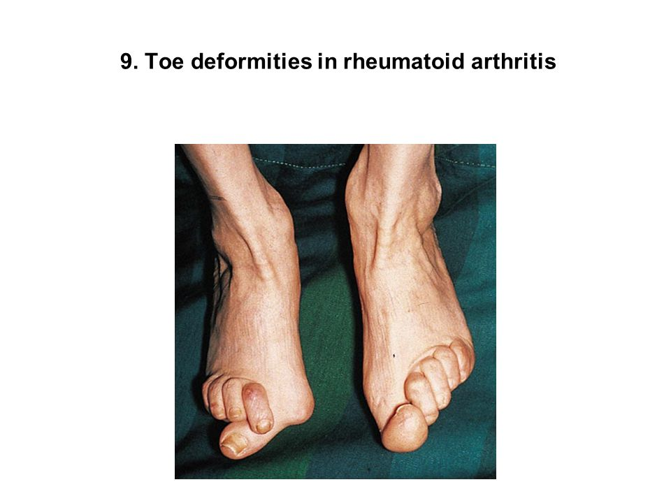 9. Toe deformities in rheumatoid arthritis