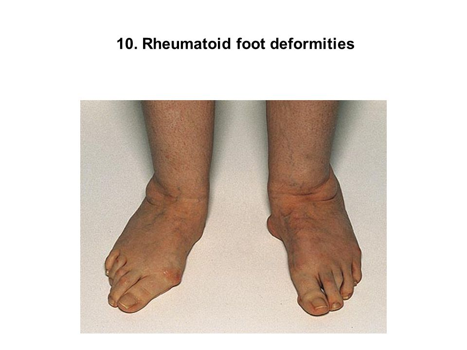 10. Rheumatoid foot deformities