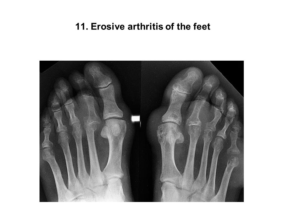11. Erosive arthritis of the feet