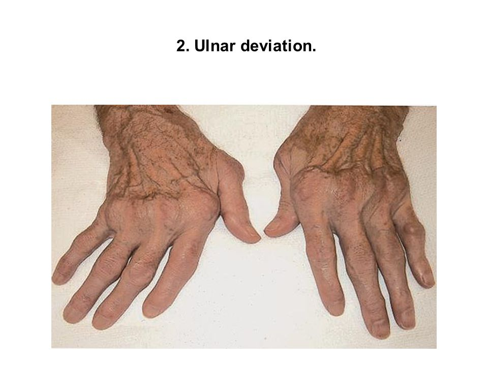 2. Ulnar deviation.