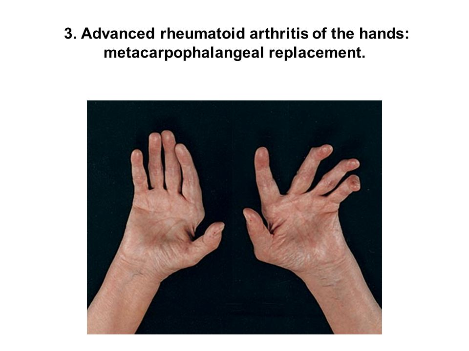 3. Advanced rheumatoid arthritis of the hands: metacarpophalangeal replacement.