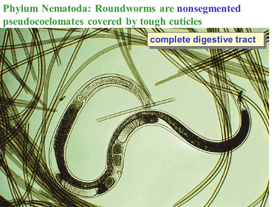 Phylum Nematoda: Roundworms are nonsegmented pseudocoelomates covered by tough cuticles