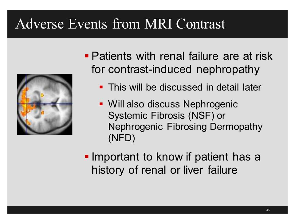 Adverse Events from MRI Contrast