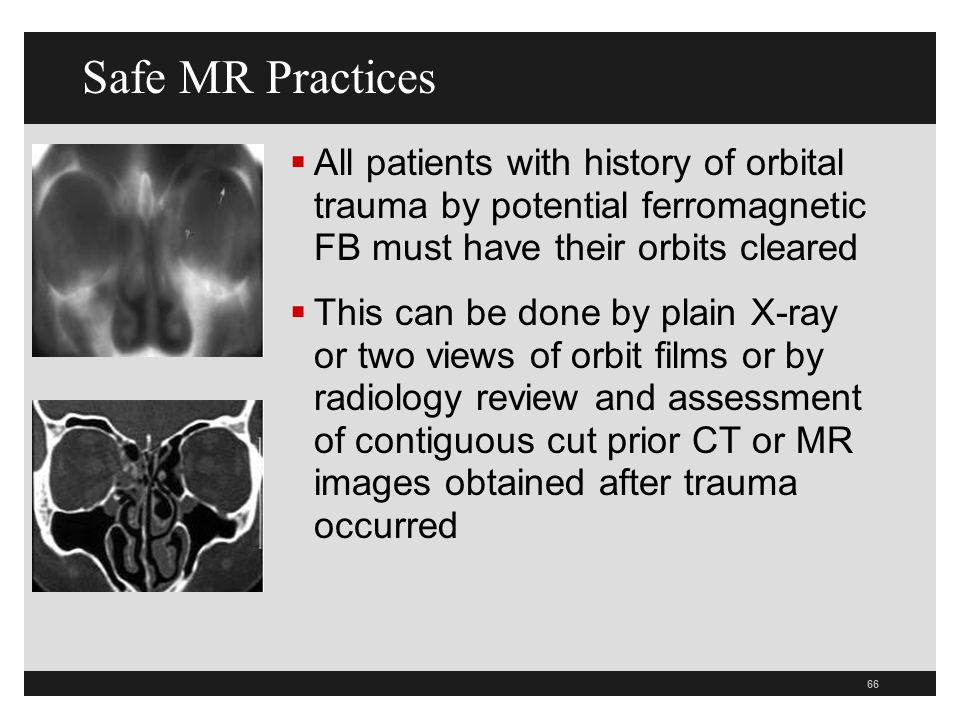 Safe MR Practices All patients with history of orbital trauma by potential ferromagnetic FB must have their orbits cleared.