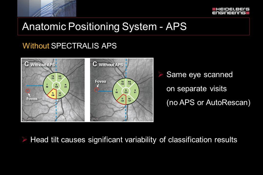 Anatomic Positioning System - APS