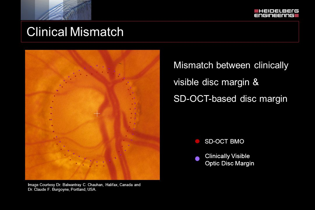 Clinical Mismatch Mismatch between clinically visible disc margin & SD-OCT-based disc margin. SD-OCT BMO.
