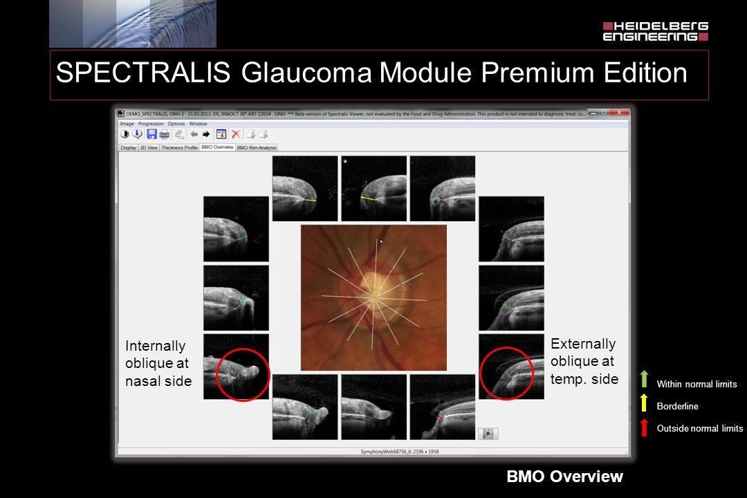 SPECTRALIS Glaucoma Module Premium Edition