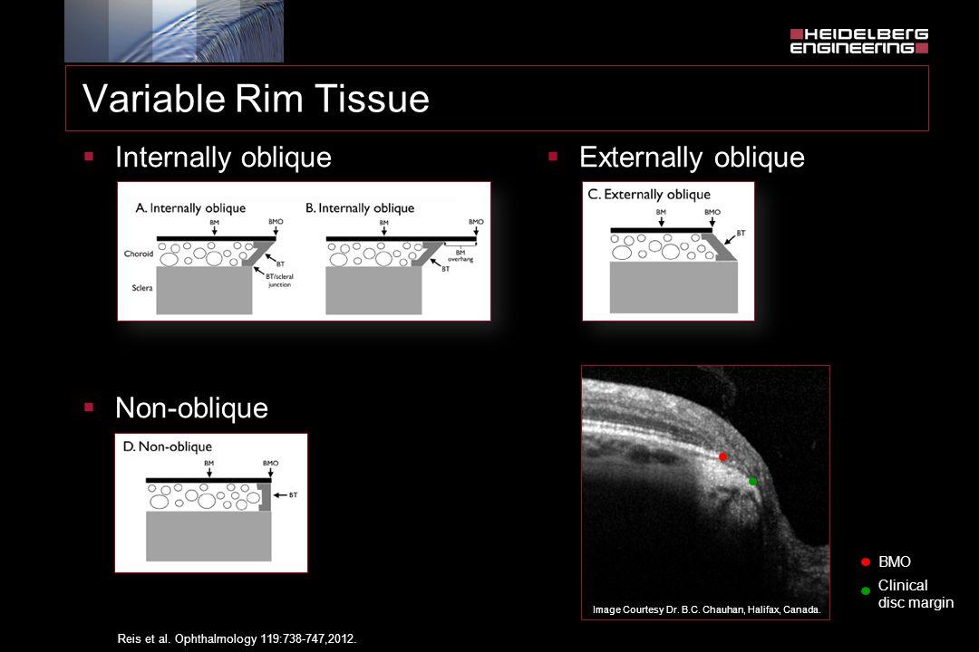 Variable Rim Tissue Internally oblique Non-oblique Externally oblique