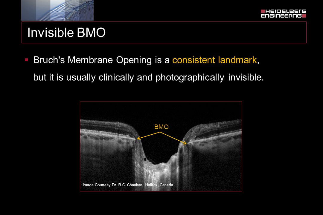 Invisible BMO Bruch s Membrane Opening is a consistent landmark, but it is usually clinically and photographically invisible.