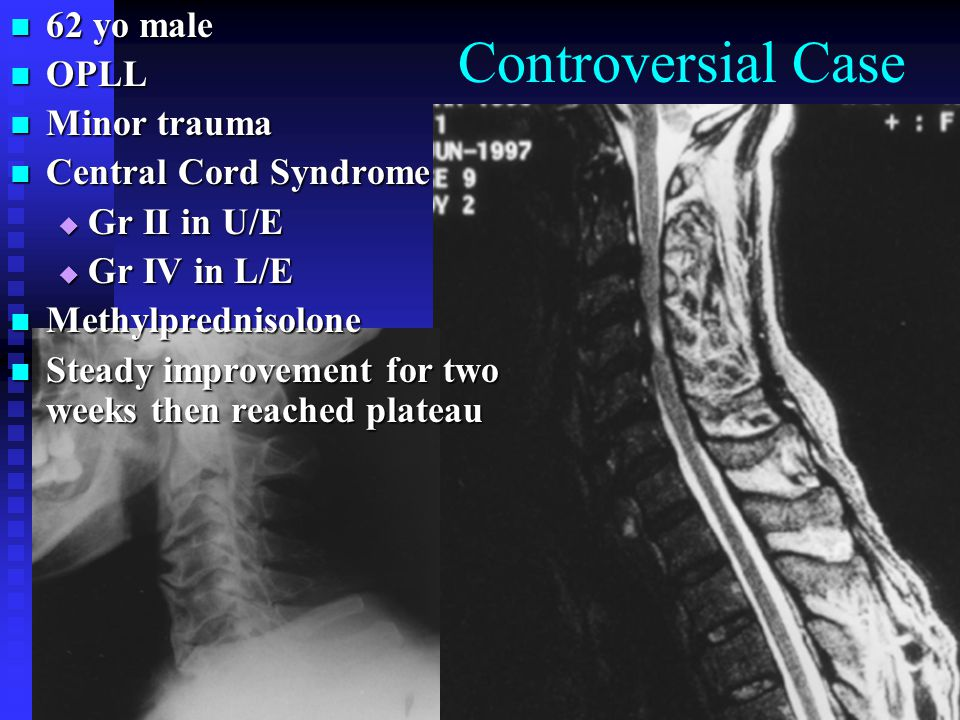 Controversial Case 62 yo male OPLL Minor trauma Central Cord Syndrome