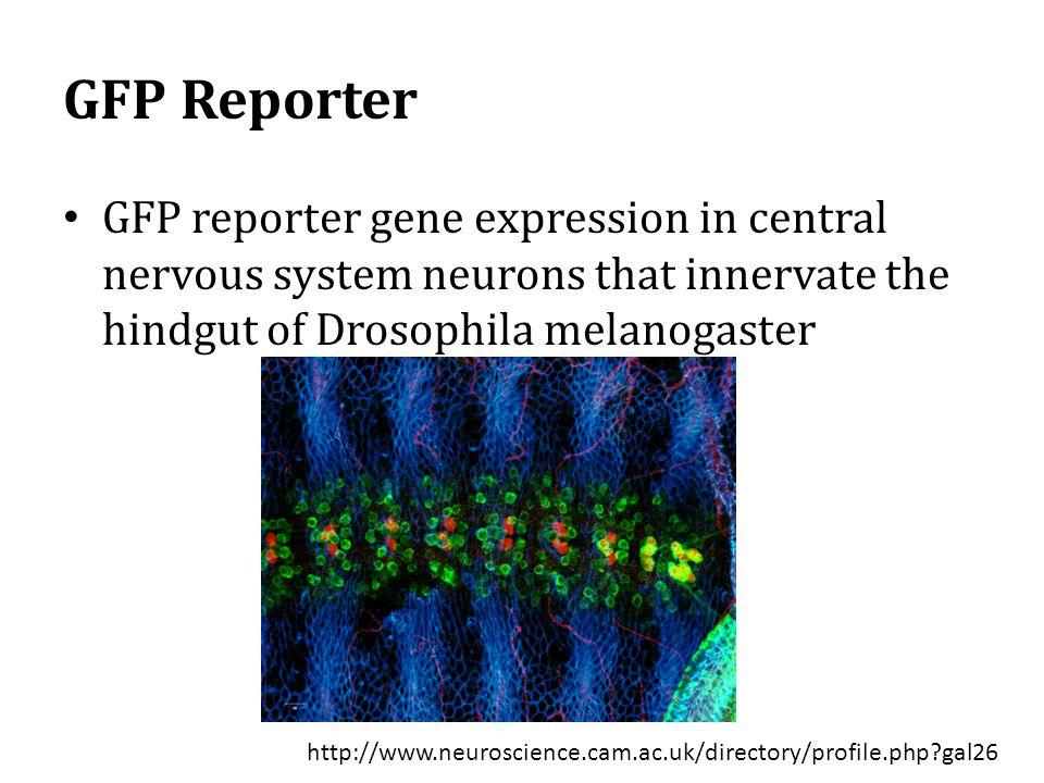 GFP Reporter GFP reporter gene expression in central nervous system neurons that innervate the hindgut of Drosophila melanogaster.