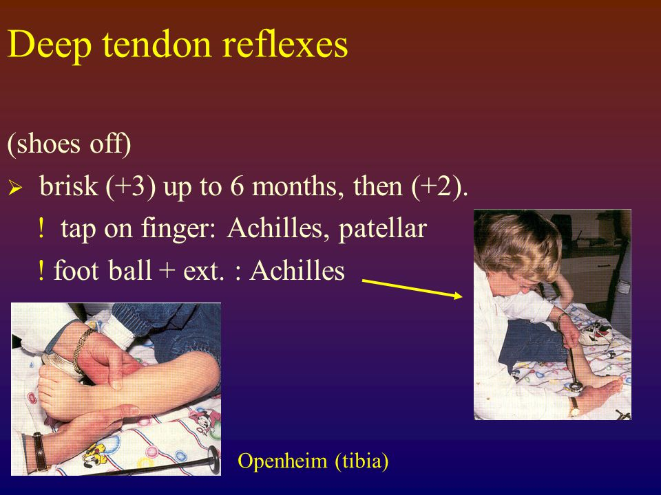 Deep tendon reflexes (shoes off) brisk (+3) up to 6 months, then (+2).