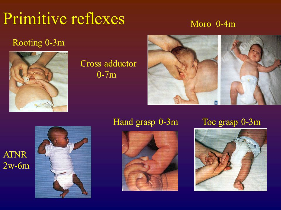 Primitive reflexes Moro 0-4m Rooting 0-3m Cross adductor 0-7m
