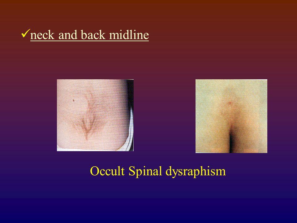 neck and back midline Occult Spinal dysraphism