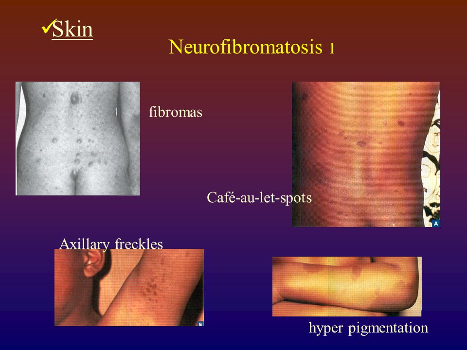 Skin Neurofibromatosis 1 fibromas Café-au-let-spots Axillary freckles