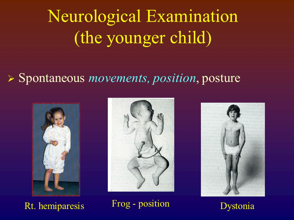 Neurological Examination (the younger child)