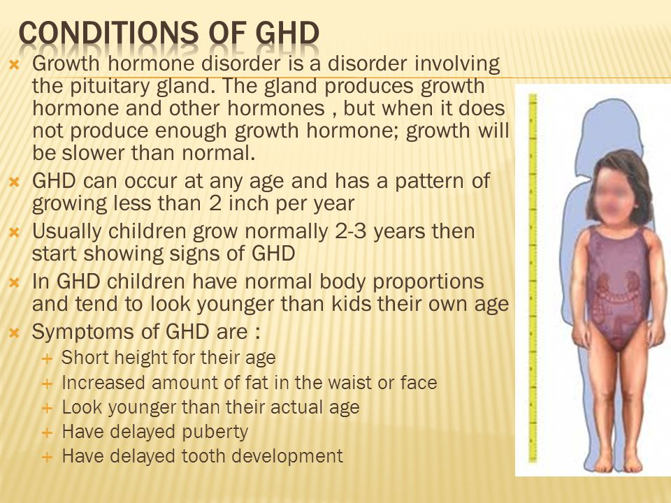 Conditions of ghd
