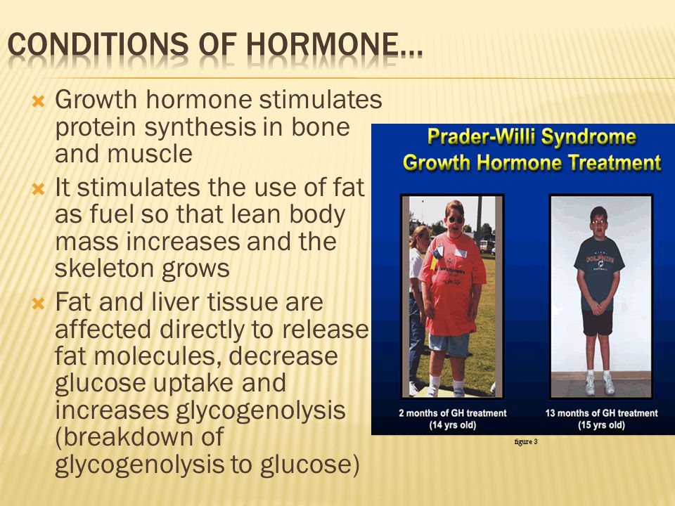 Conditions of hormone…