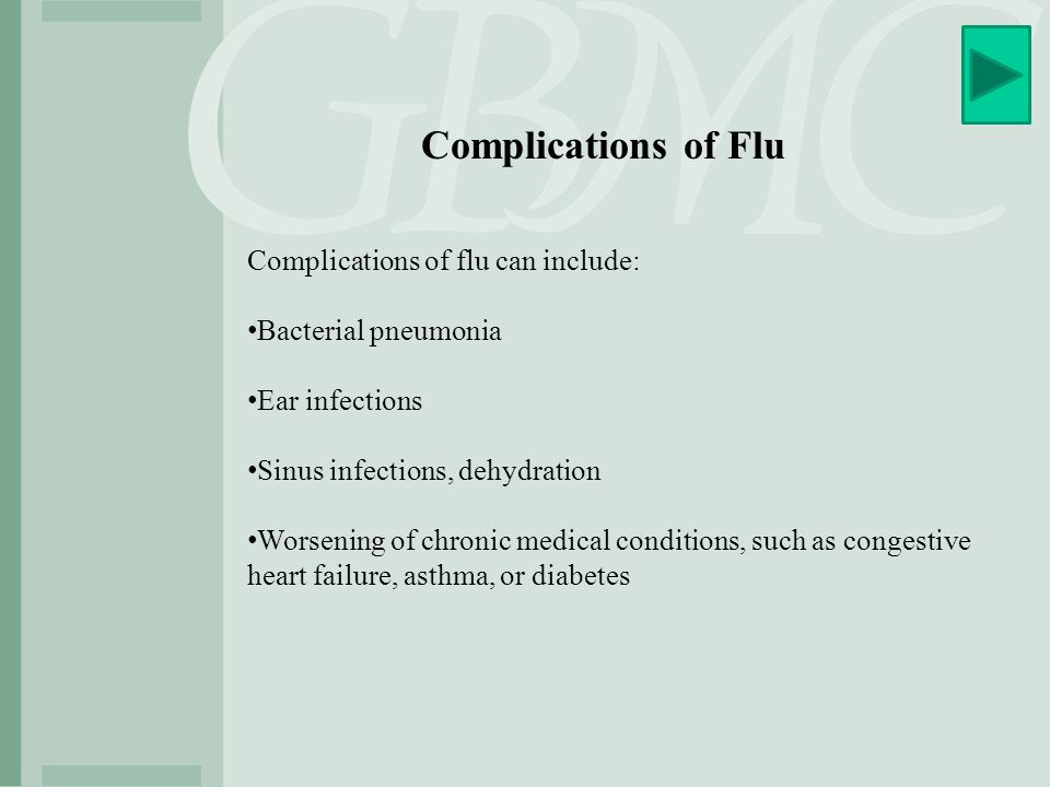 Complications of Flu Complications of flu can include: