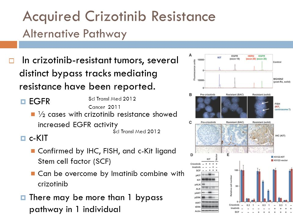 Acquired Crizotinib Resistance Alternative Pathway