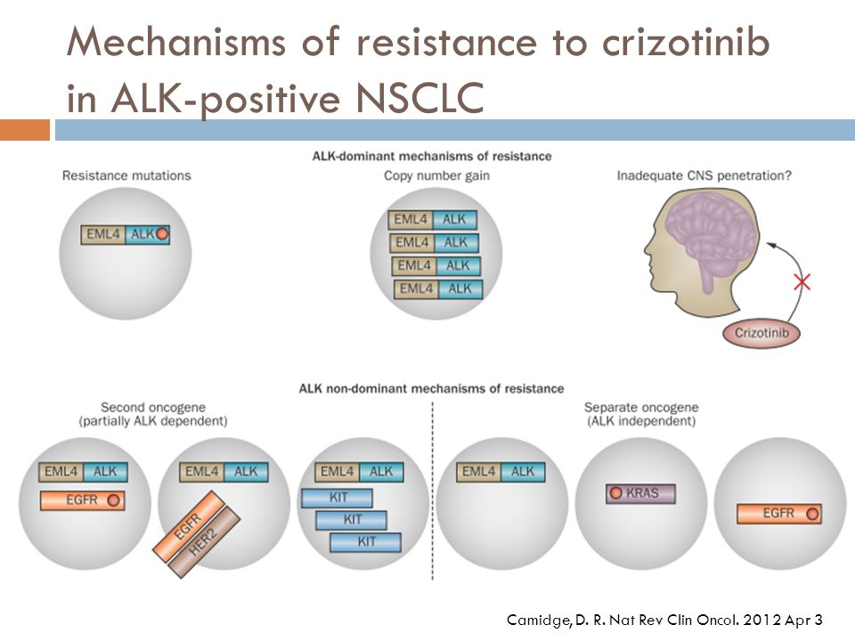 Mechanisms of resistance to crizotinib in ALK-positive NSCLC
